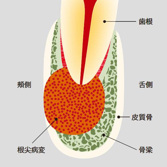 図2 病変が広がり、皮質骨まで破壊が進行すると、デンタルでも根尖病変を検出しやすくなる。