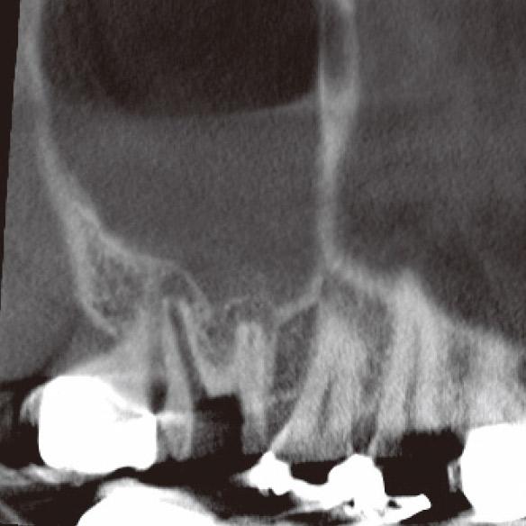 図4b CBCT(矢状断)では頰側根根尖部に病変が確認された。