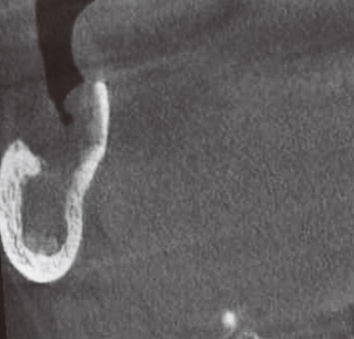 症例2-4 遠心方向からのCT画像ではさらに海綿骨の希薄さが確認できる。
