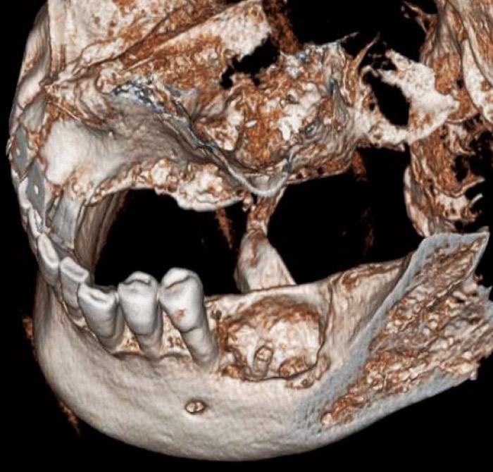 症例2-6 3Dによる立体画像は患者さんに骨吸収量を理解していただくために有効である。