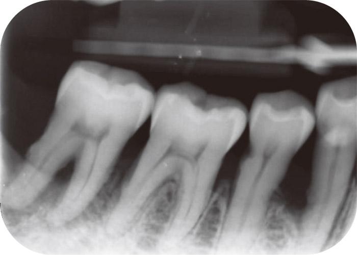 症例1-2 同部位のデンタルX線写真では遠心根の周囲の骨が吸収していると想像できる。