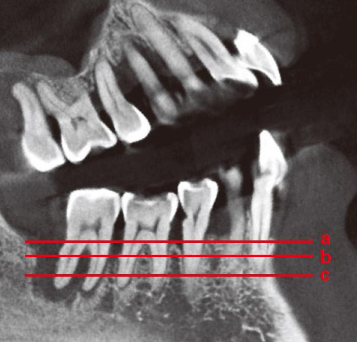 症例1-3 さらにCT撮影を行い赤線方向にスライスして骨吸収の状態を確認する。