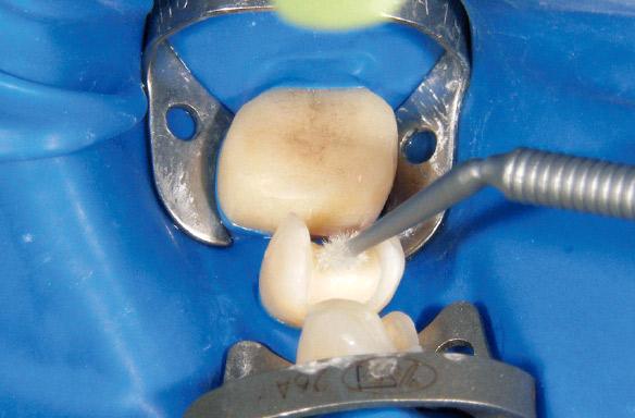 図13 防湿と歯肉圧排を目的にラバーダムを装着した。その後トゥースプライマーを用いて支台歯にも接着前処理を行った。