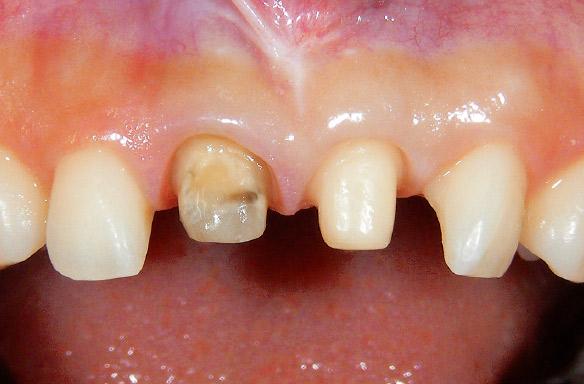 図16 20代女性。1 1 に対して審美的な改善を目的に補綴処置を行った。支台歯形成終了後の状態。