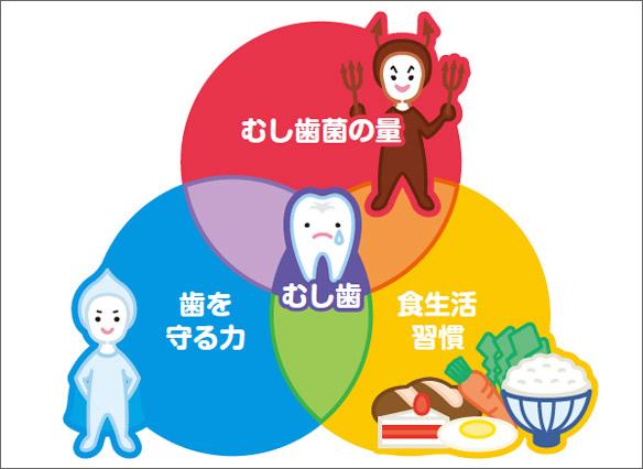図6 う蝕の発生因子 〜カイスの輪〜。