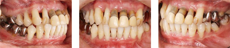 図9 初診時(2013年5月)の歯周病の急性発作後、歯ブラシ指導、歯肉縁上のプラーク除去で症状が落ちついた状態(2013年8月)。