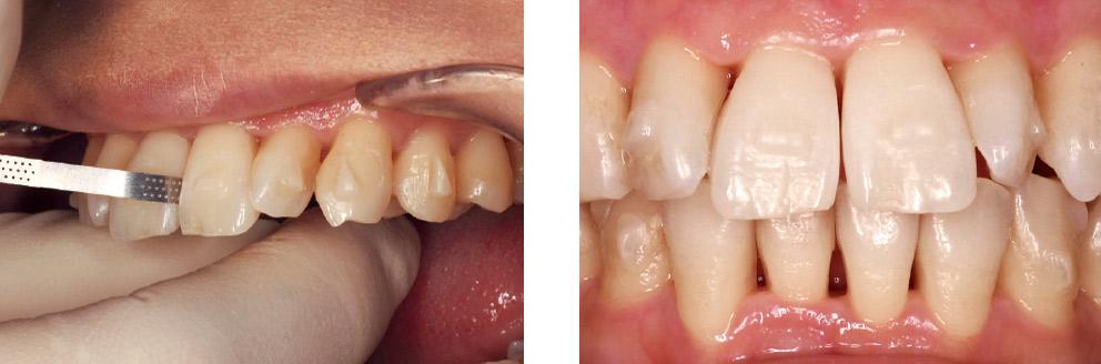 症例2-4 治療計画にのっとり上顎正中部のディスキングを行った。