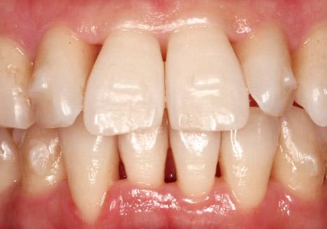 症例2-5 ディスキングから2ヵ月後の口腔内。経過途中だが叢生の改善が見られる。