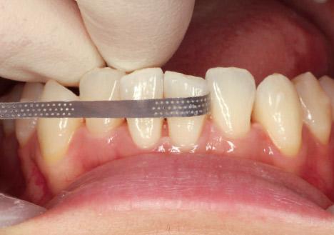 症例1-3 下顎叢生部の1回目のディスキング時。叢生が残っているが「グリップストリップ」は彎曲させることで削りたい箇所だけの削合が可能。