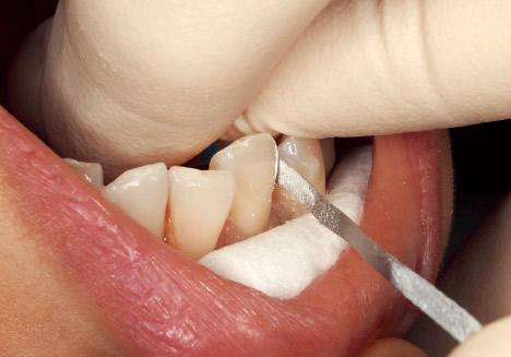 症例1-4 下顎叢生部の2回目のディスキング時。「コース」はメッシュ状に小さな穴が開いているため、この状態でも目詰まりは起こしていない。