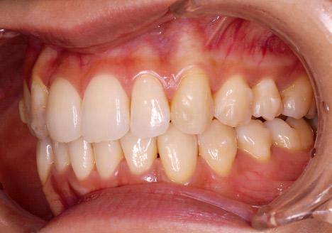 症例1-5 最初のディスキングから3ヵ月後の口腔内。経過途中だが叢生の改善が見られる。
