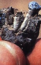 下顎の第1乳臼歯