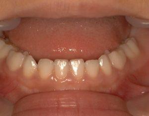 過蓋咬合のため、下顎前歯が舌側へ傾斜している