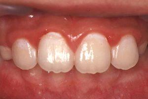 小学校2年生の前歯